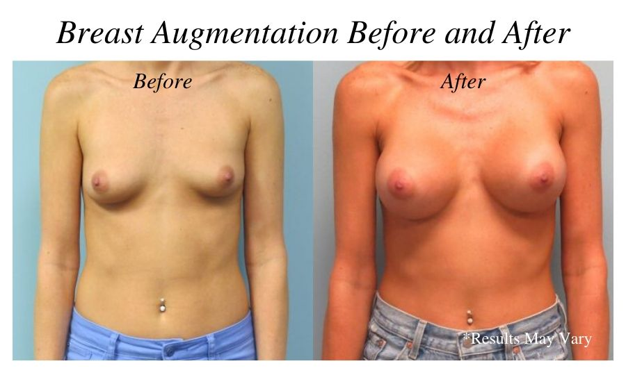 Before and after imaging showing the results of a breast augmentation performed in Corpus Christi, Texas.